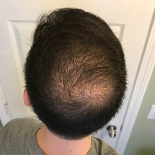 4 Months With Irestore Laser Therapy 4 12 18 Follow My Hair